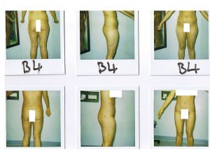 Female - Tummy, hips, OT- Lipo Before and After2