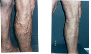 Varicose Vein treatment Melbourne