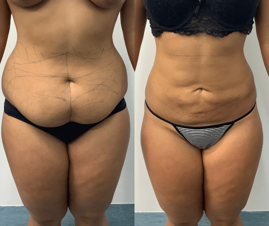 female stomach liposuction results