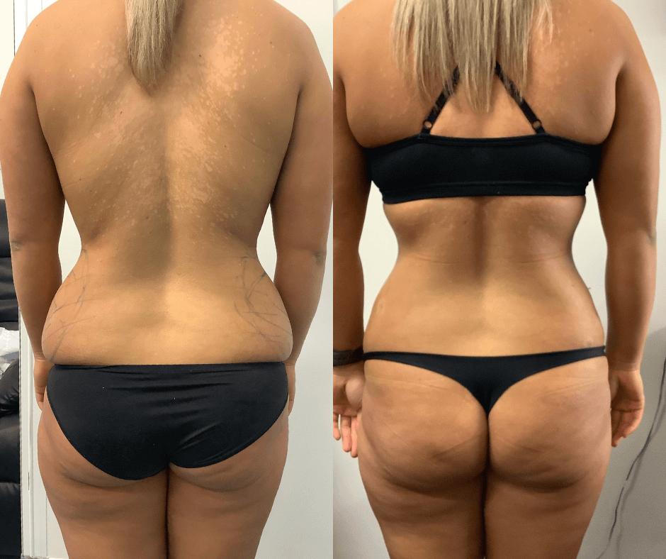 female love handles liposuction results