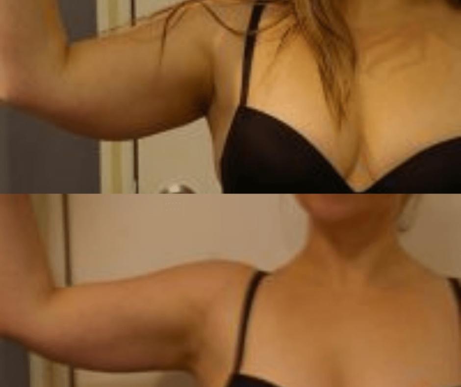 arms women