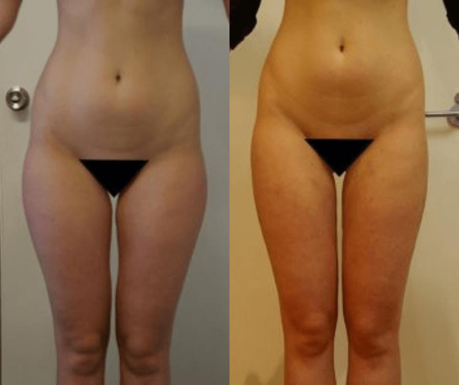 women thighs (4)