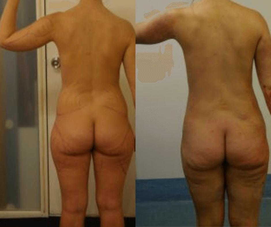 women thighs (5)