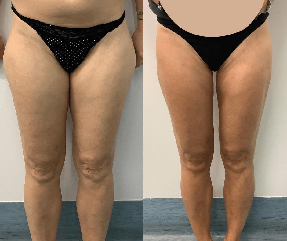 women thighs
