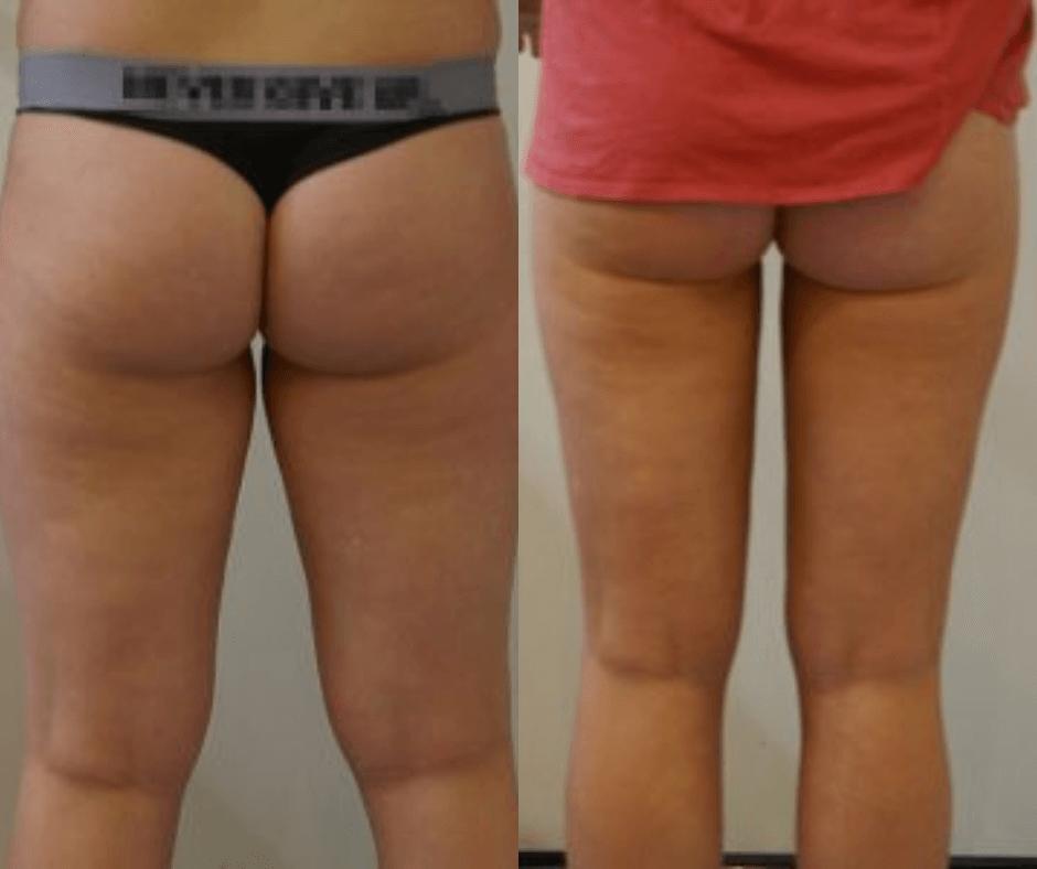 female thigh liposcution results